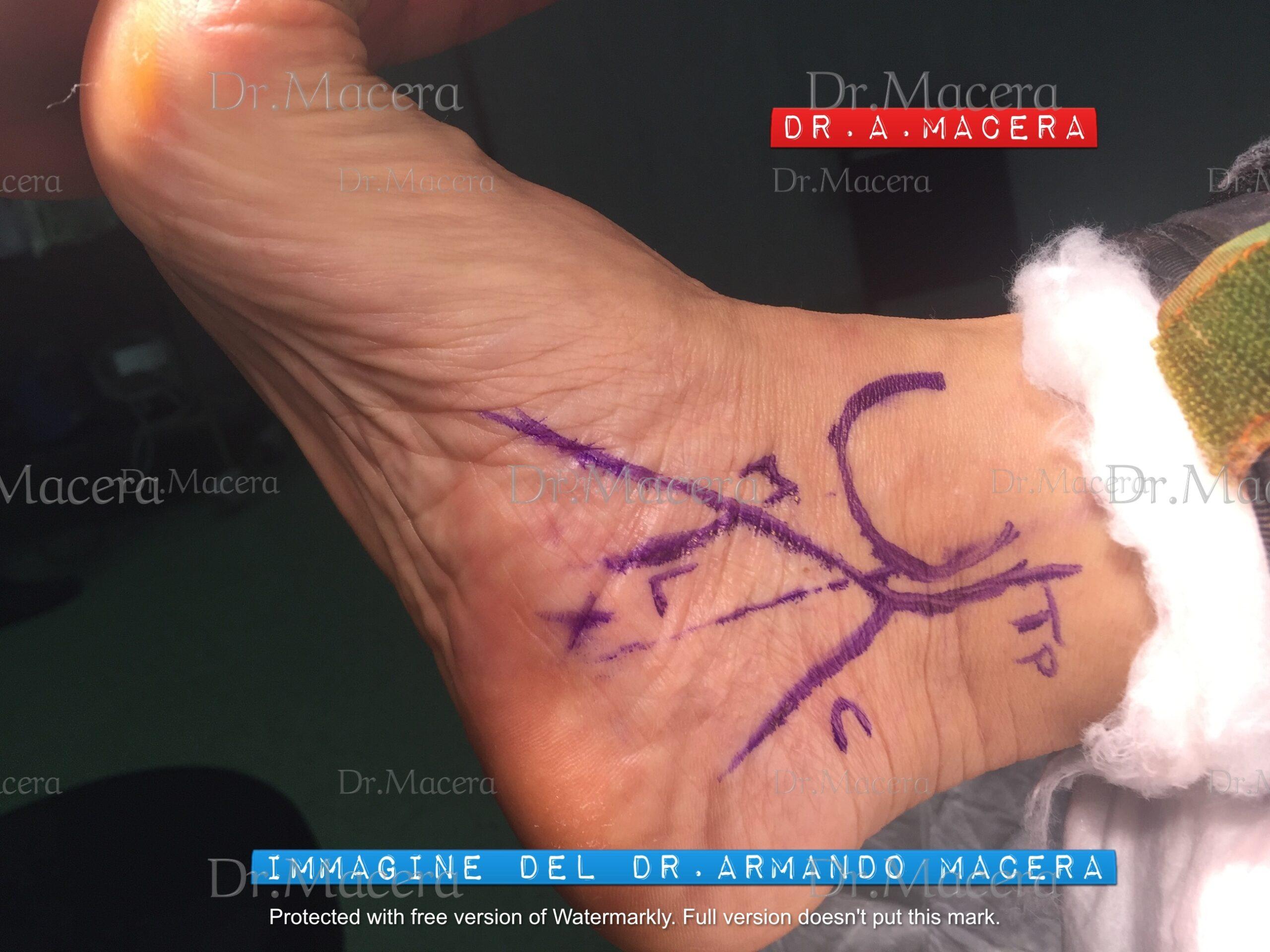Tecnica endoscopica mininvasiva